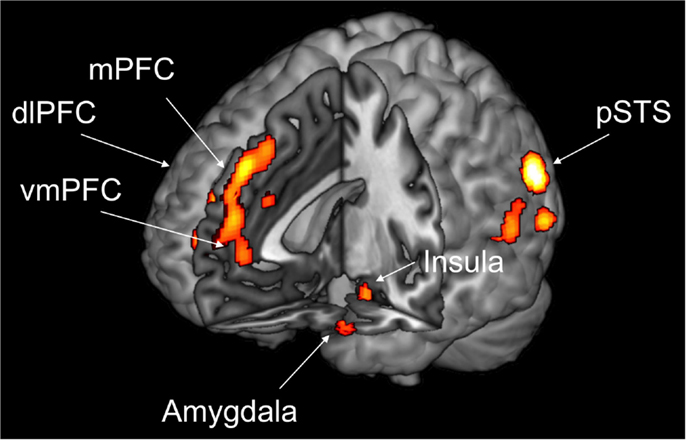 Figure 1 - Morality requires an interaction among several separate but connected brain regions, in particular the posterior superior temporal sulcus (pSTS), the insula, the amygdala, the medial prefrontal cortex (mPFC), the dorsolateral prefrontal cortex (dlPFC), and the ventromedial prefrontal cortex (vmPFC).